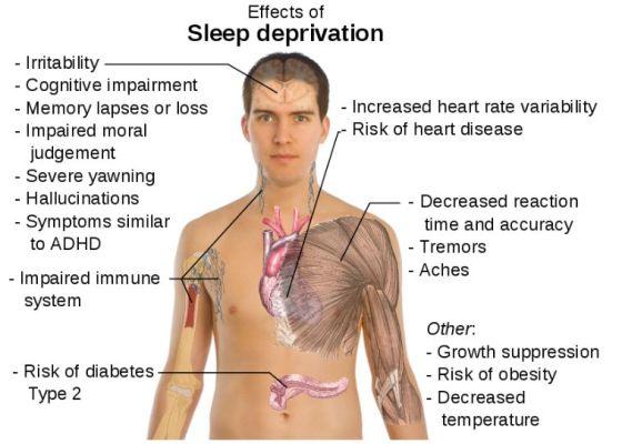 lack-of-sleep2